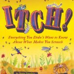 Itch: Everything You Didn't Want to Know About What Makes You Scratch